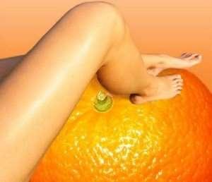 narancsbőr-kezelés-budapest