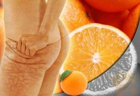 narancsbőr-masszázs-köpöly